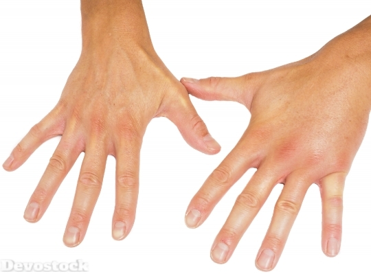 Devostock Comparing swollen male hands isolated towards white background